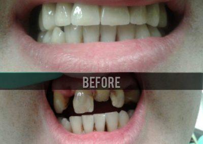 Dental - Health Go Serbia