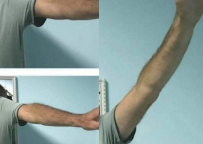 Trigger Point Therapy - Health Go Serbia
